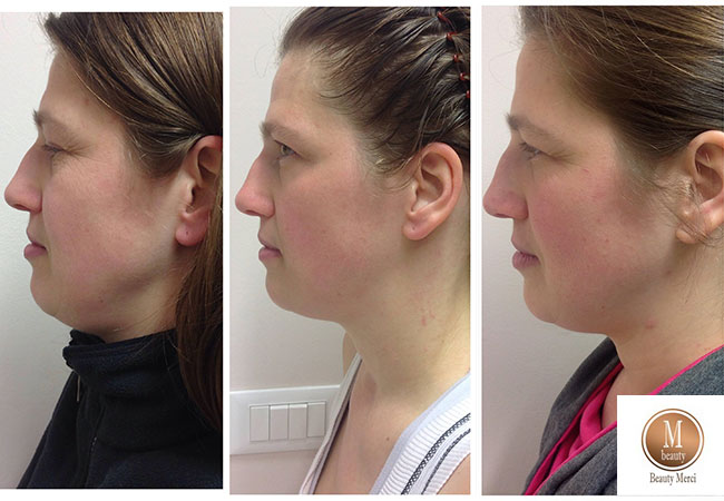 yoga facciale antirughe