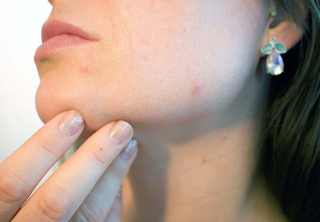 rimedi efficaci acne